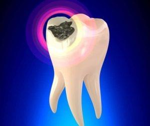 Tooth cavity treatment