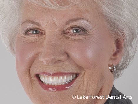 Looking for the best cosmetic dental treatments