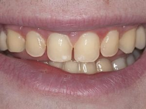 Lost tooth enamel from enamel erosion