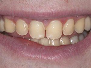 Lost tooth enamel from enamel erosion