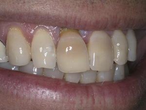 Smile discolorations