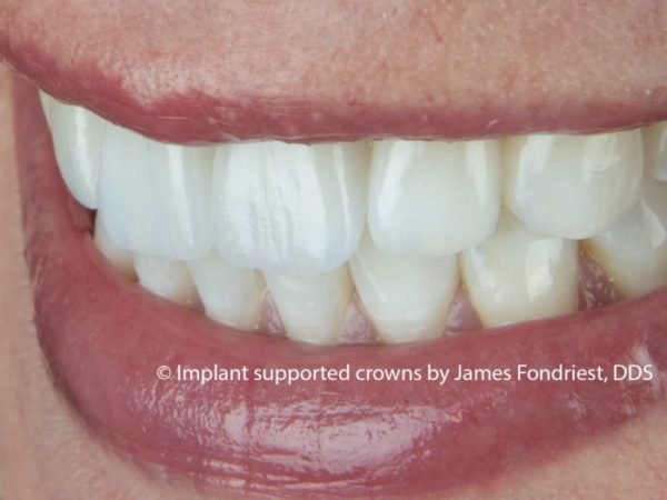 Dental Implants | implant crown | implant dentist