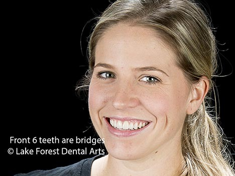 Dramatic cosmetic dental changes