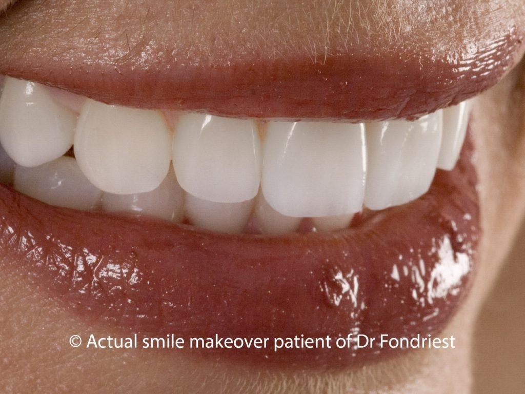 Veneering Teeth