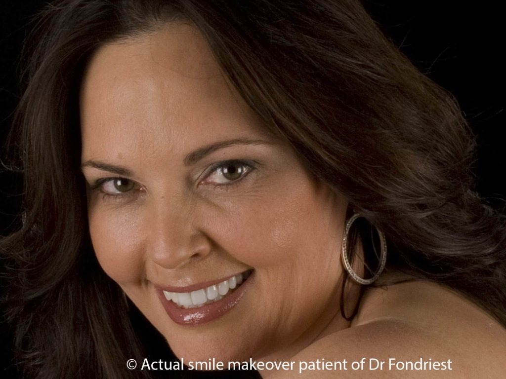 smile makeover done with teeth covers