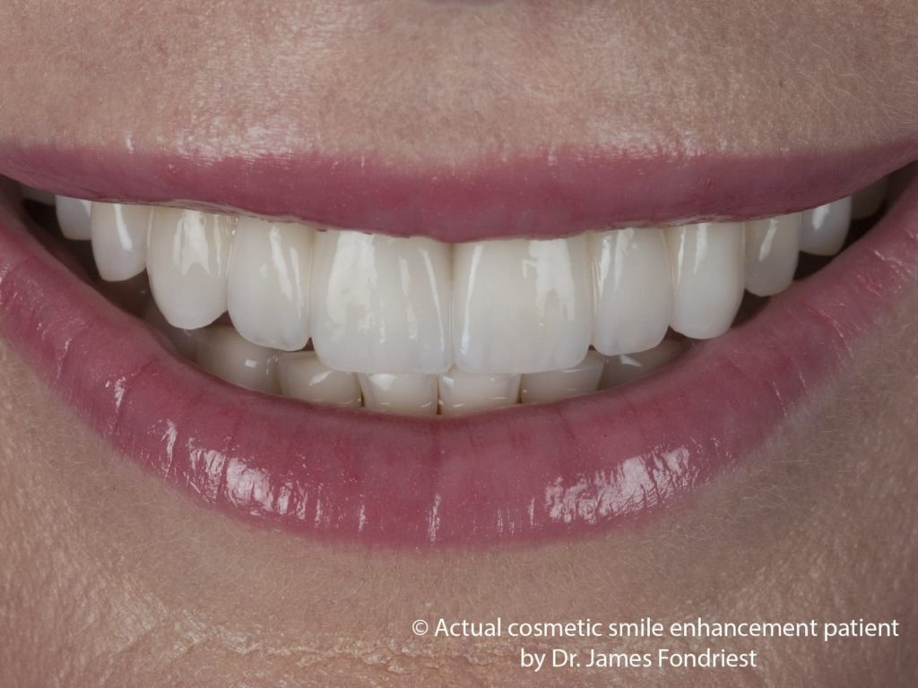 Porcelain dental bridge picture