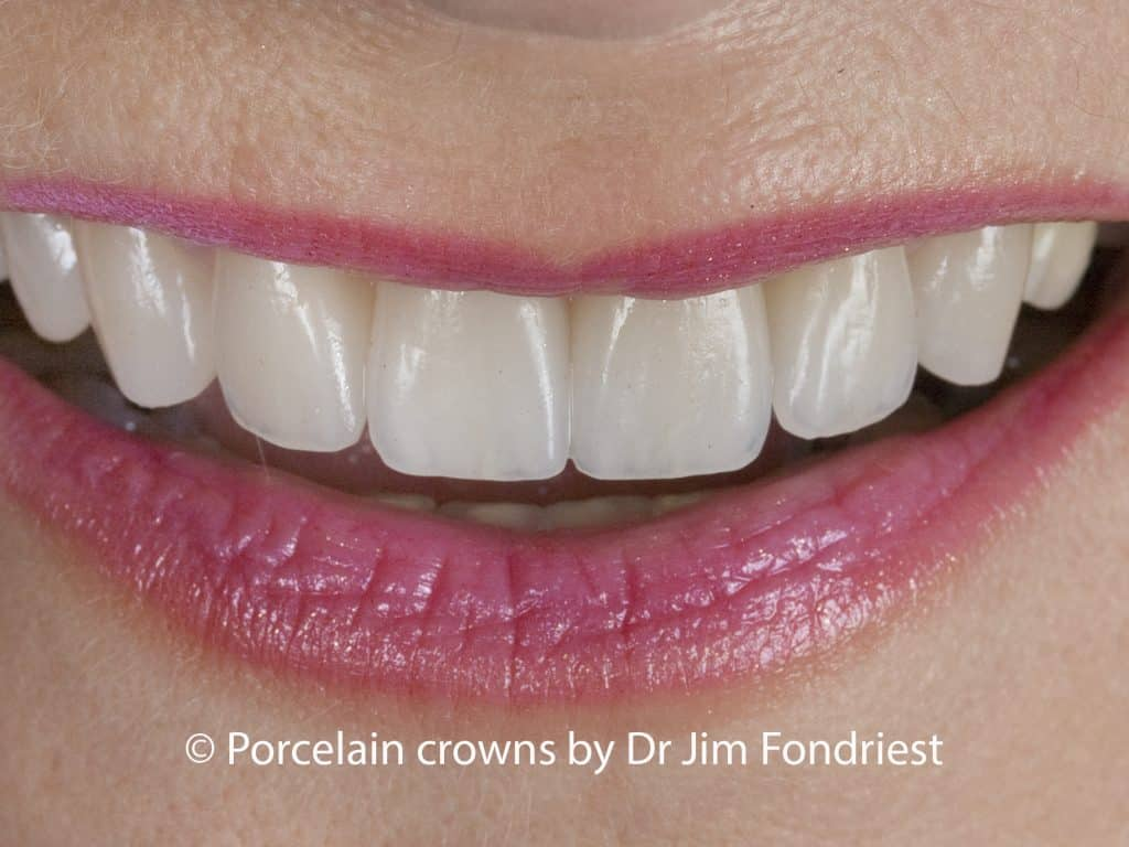 Porcelain crowns made with E Max