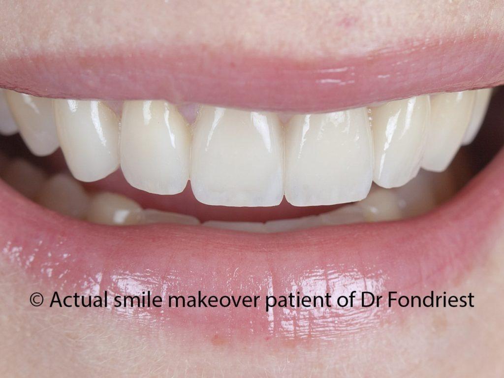 Tooth veneers for grinders