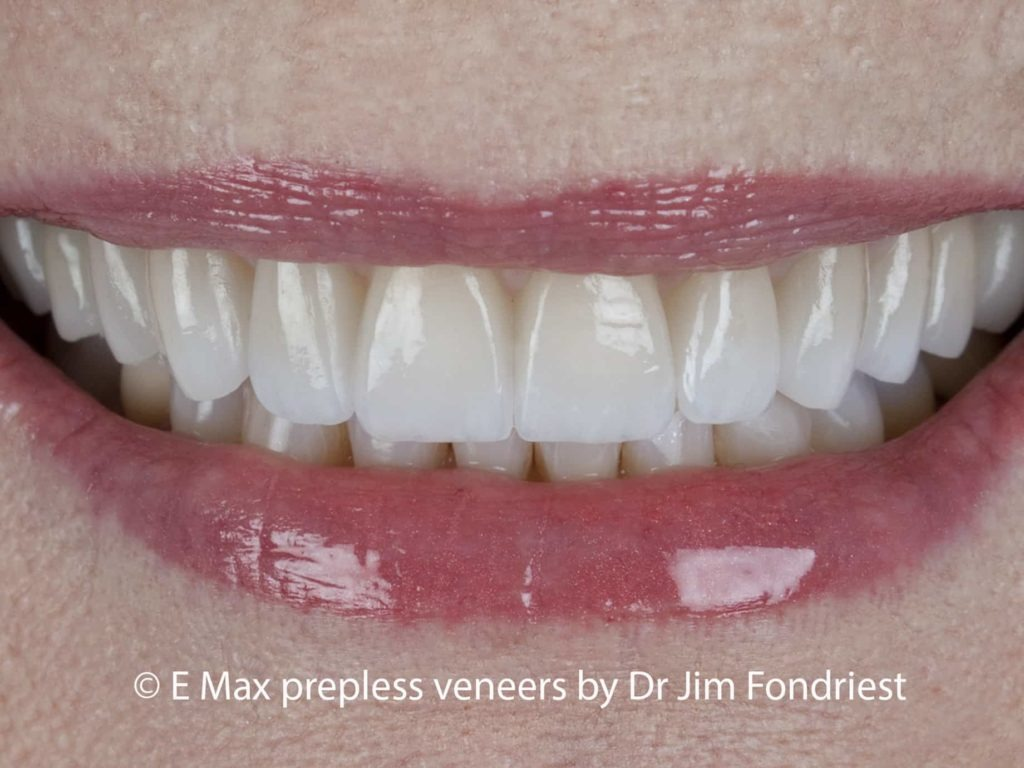 Tooth Veneers without drilling