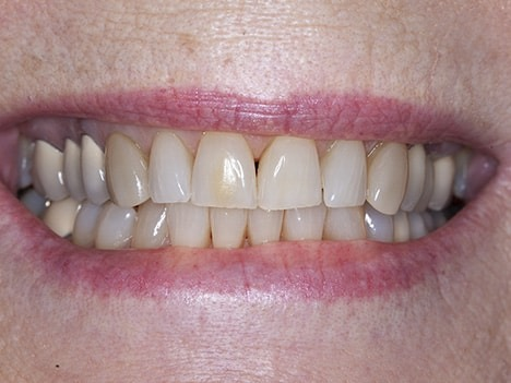 Poorly matched crowns, veneers, bonding