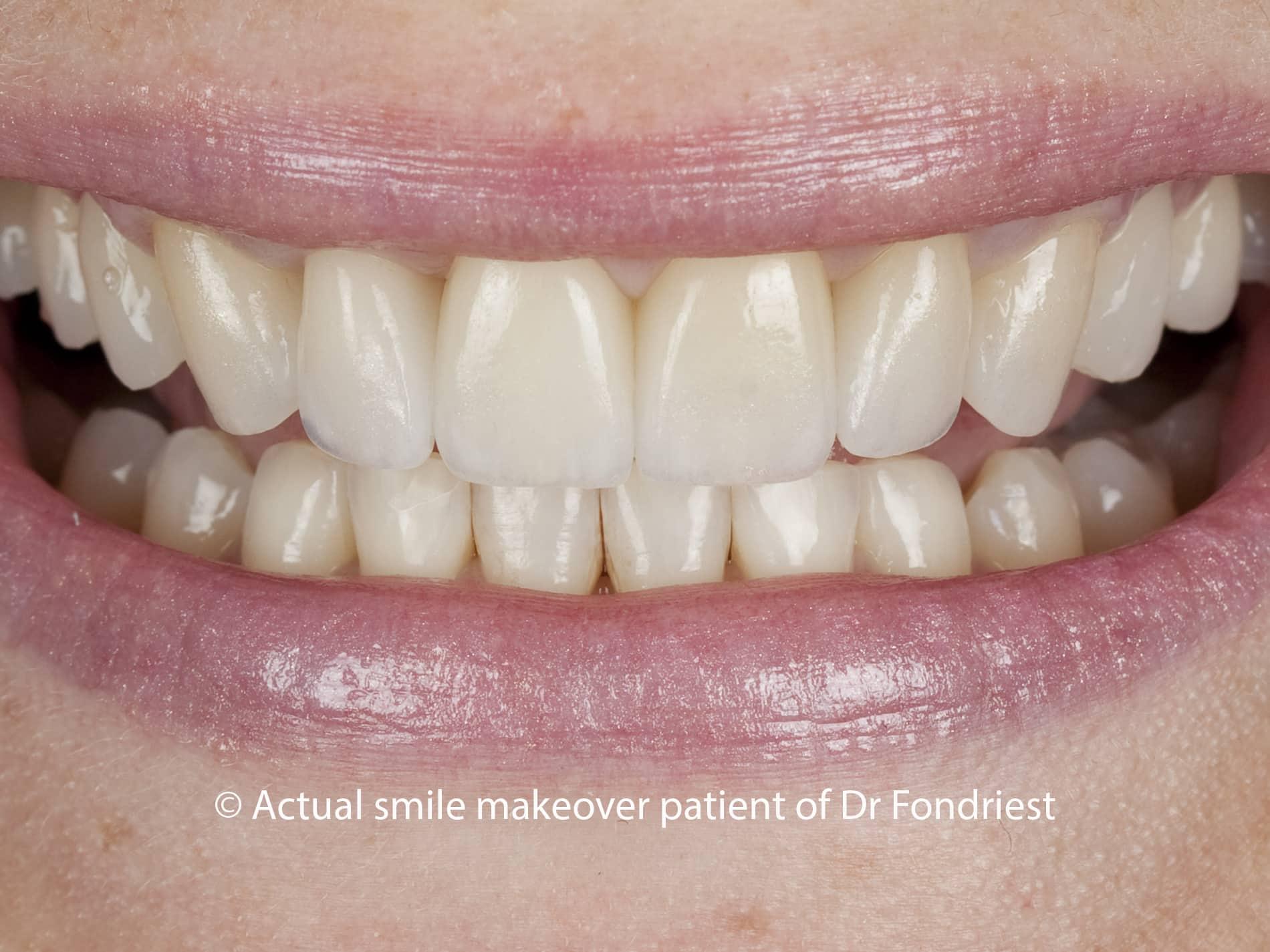 E Max porcelain veneers, Veneers as alternative to orthodontics