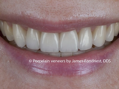 filling black triangles, veneers before and after