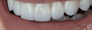 Will veneers ruin my teeth