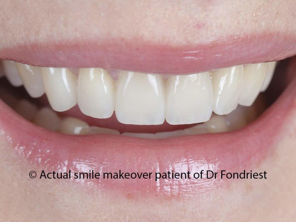 Dental veneers for grinders