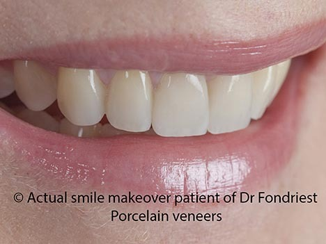Veneers are good for teeth