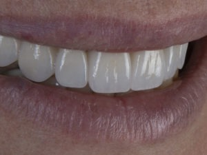 Quality cosmetic dentistry in Chicago