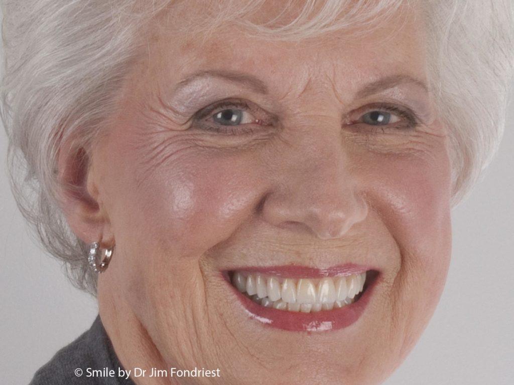 Expert Cosmetic Dentistry in Deerfield, IL