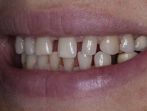 Before treatment photo of filling spaces between teeth