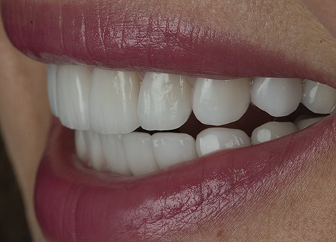 Closing gaps and spaces between the teeth with crowns