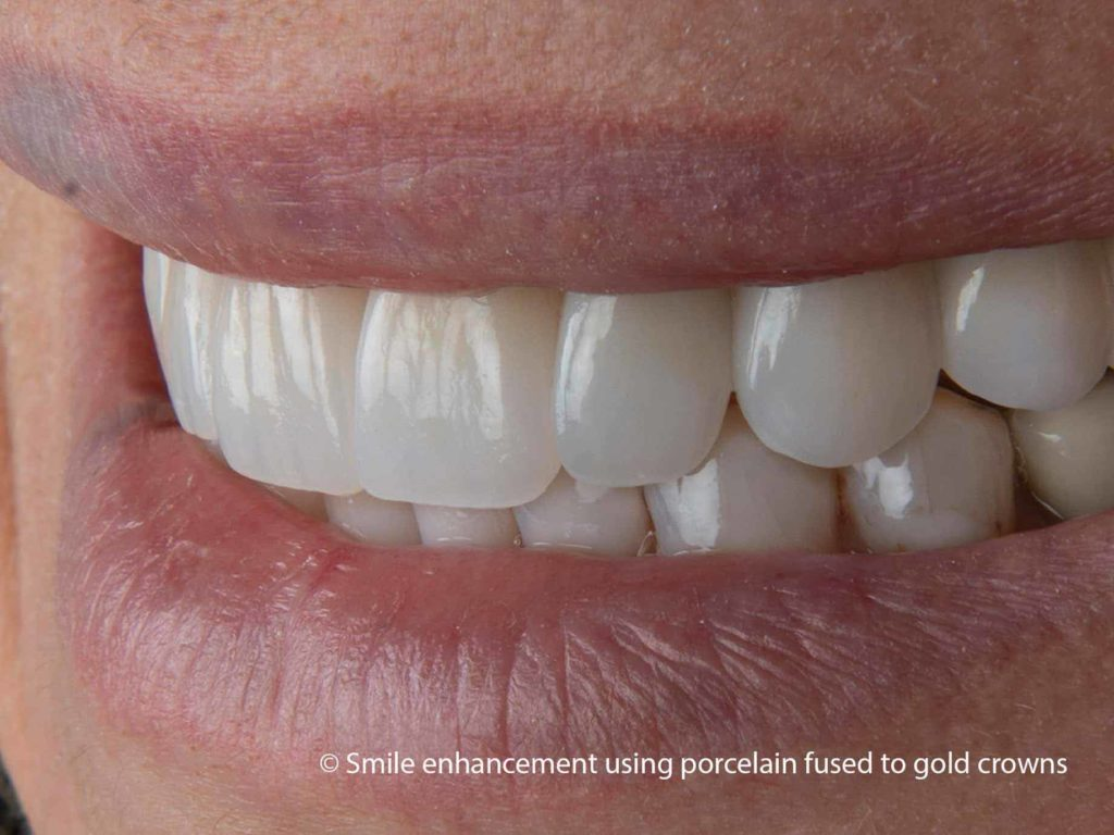 porcelain on metal crowns