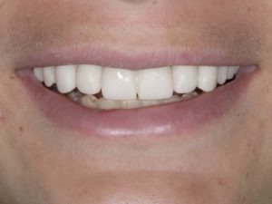 Temporary crowns to confirm phonetics and esthetics