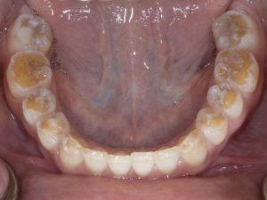 Celiac causes harm to both enamel and dentin