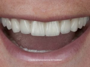 Dental treatment for Celiac sufferers