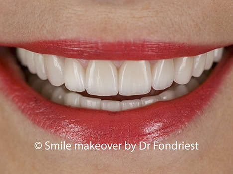 Raising the gumline to fix a gummy smile