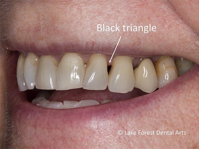 Lost Gum papillae from between teeth