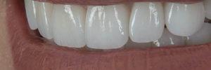 teeth caps in smile