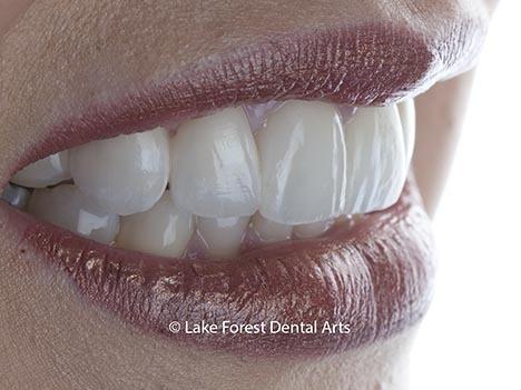 PFM fixed dental bridges, dental bridge before and after