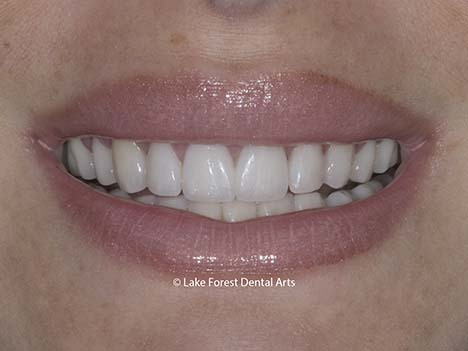 Bruxism veneers for worn teeth