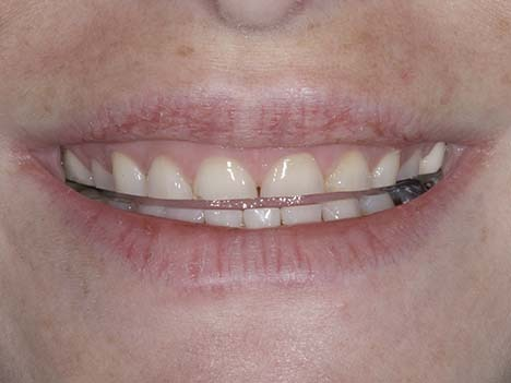 Shortened teeth from nighttime bruxism, tooth grinding