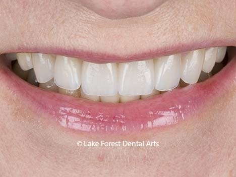 Tooth straightening without orthodontics