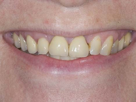 straighten teeth without braces