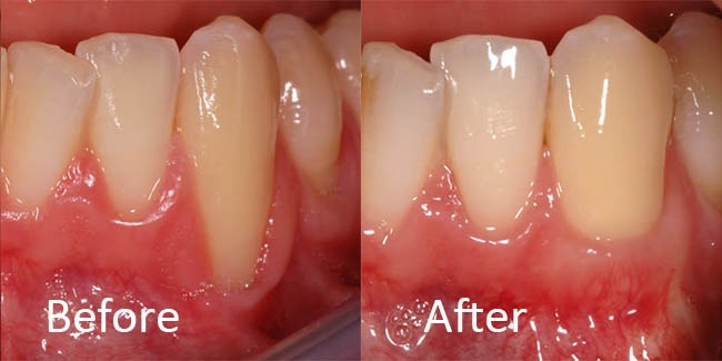 gum recession can be fixed with a gum graft