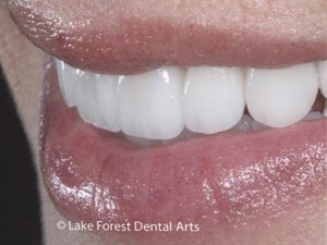 Crowns to close space between teeth