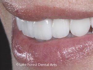 Crowns to close space between teeth
