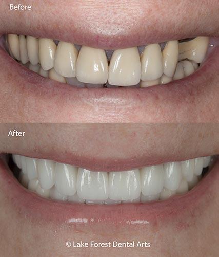best dental crowns