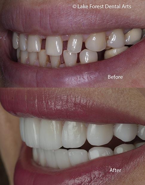 black spaces between teeth