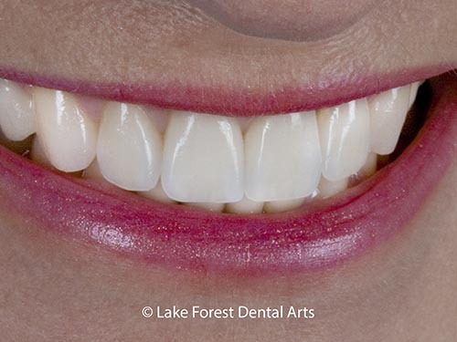 Crowns done by Chicago cosmetic dentist