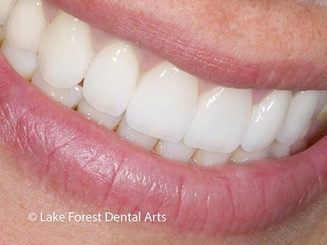 dental bridge before and after with ovate pontic