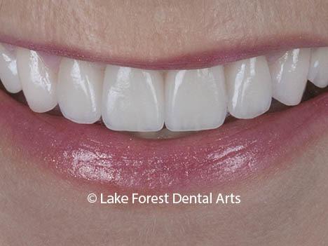 Smile Makeover done by Chicago Smile dentist