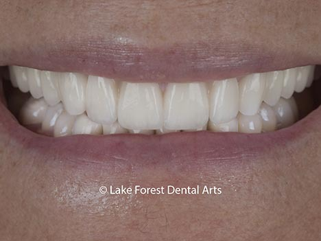 after image of prosthodontic makeover