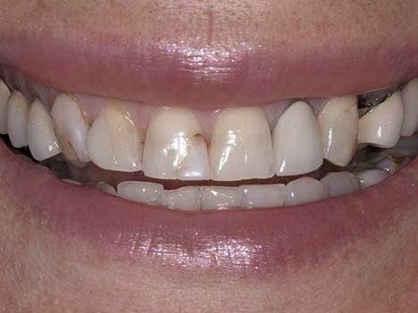 Smile makeover before image