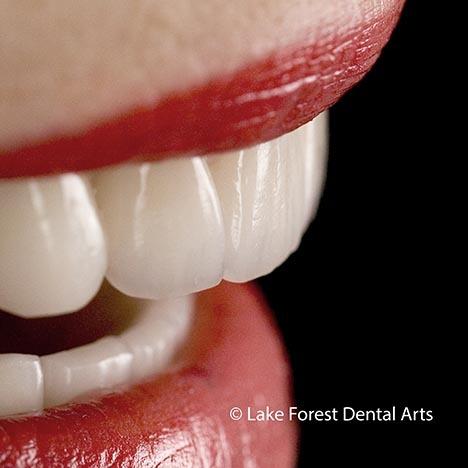 disadvantages of dental bridges