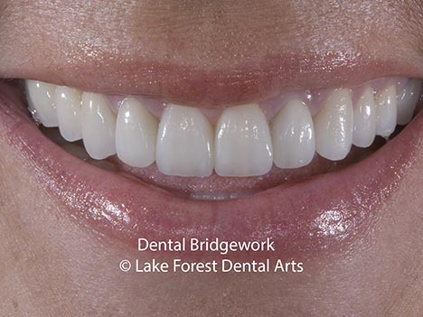 Dental Bridgework