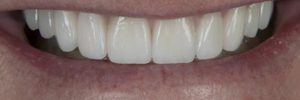 Zirconium crowns
