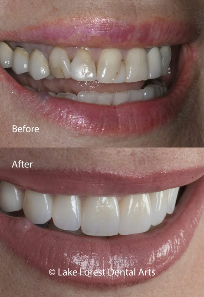 Zirconia crowns before and after