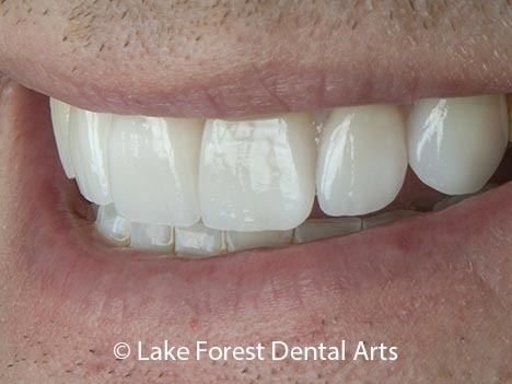 Braces before veneers